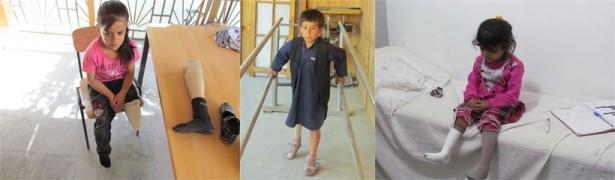 Amputation - Schicksal vieler afghanischen Kinder