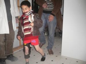 Nach Anbringung einer Orthese kann das sichtbar erfreute Kind mit gestrecktem Bein gut gehen