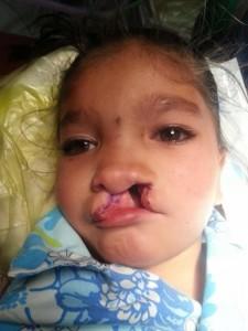Manisha vor der Operation
